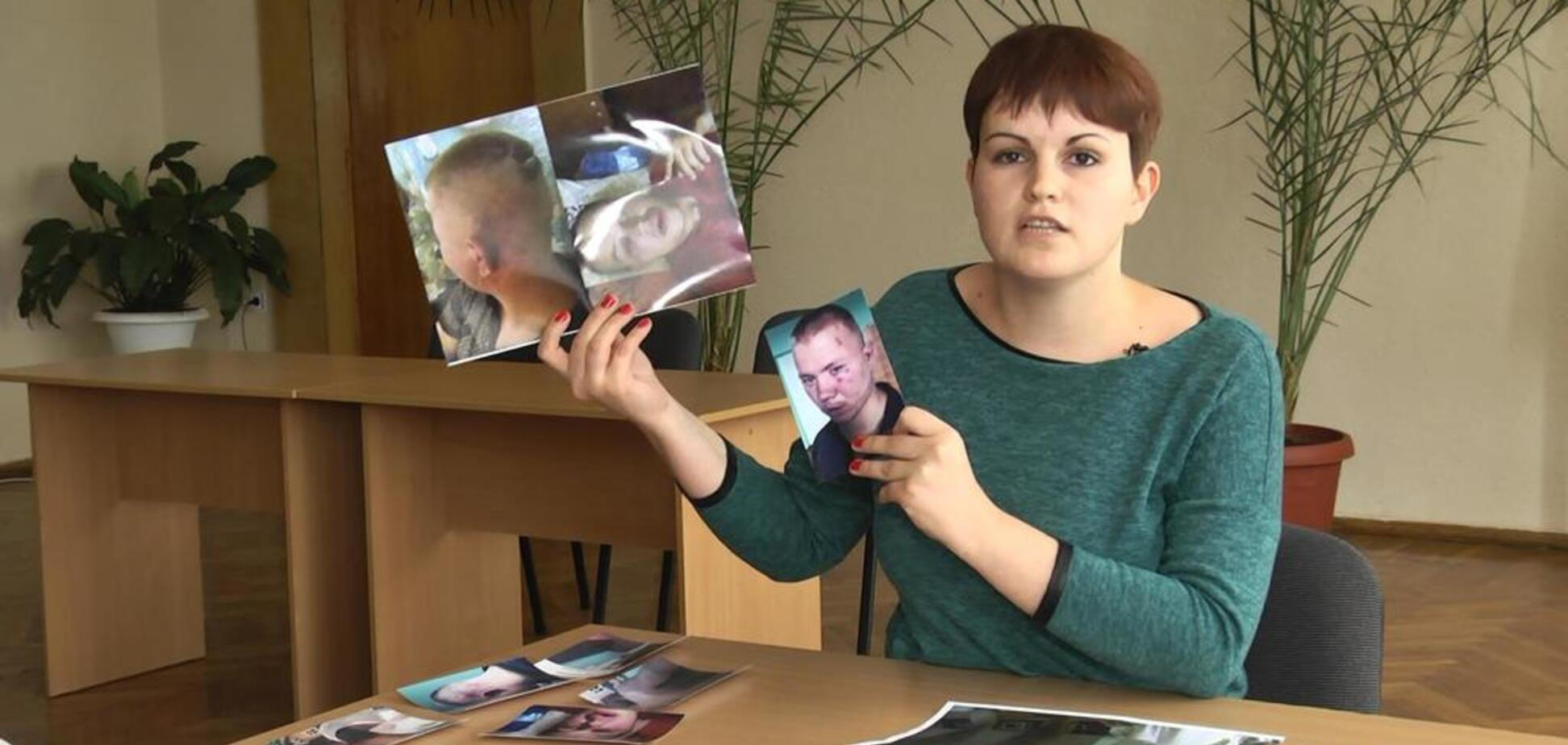 Кулаком в обличчя: відому українську журналістку жорстоко побили під час зйомок в інтернаті