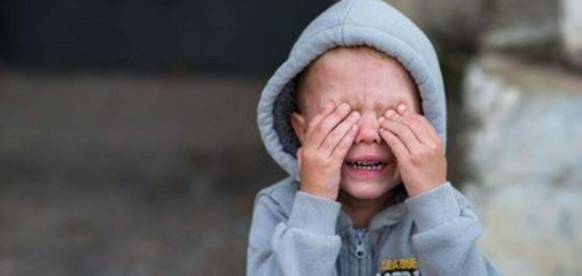 На Прикарпатье ребенка погибшего воина АТО жестоко избили за казачий чуб. Фотофакт