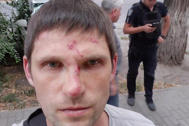 В Днепре ''титушки'' избили волонтера