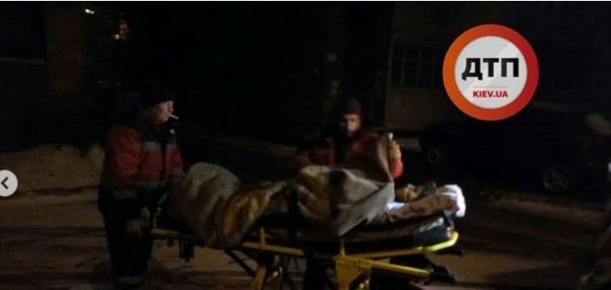 У Києві собака покусав двох жінок: подробиці НП