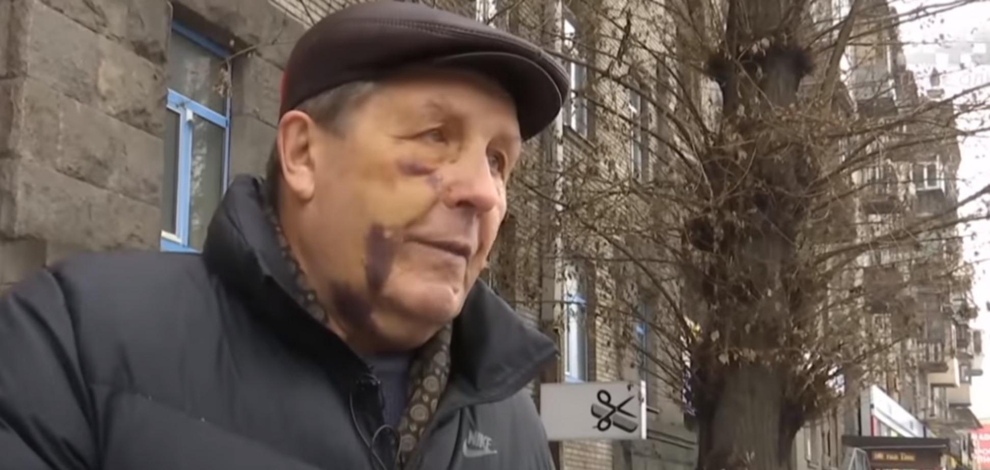 Лупили ногами по голове: в Киеве жестоко избили авиаконструктора ''Мрии''