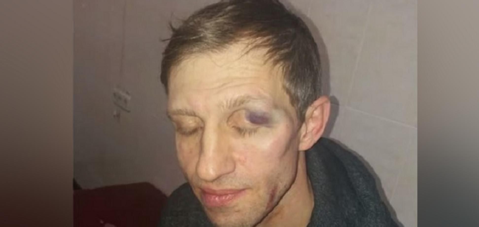У Києві батько школяра жорстоко побив учителя: з'явилися нові подробиці