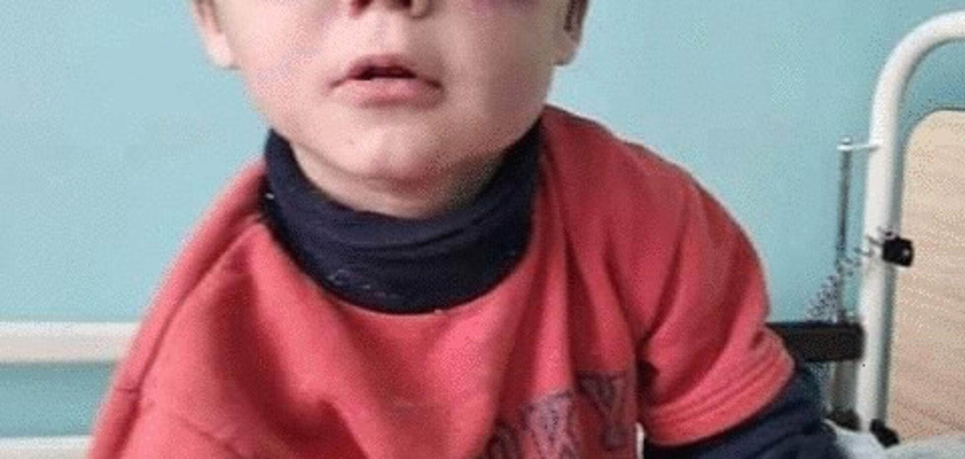 За синяками не видно глаз: на Винничине нашли жестоко избитого маленького ребенка. Фото 18+