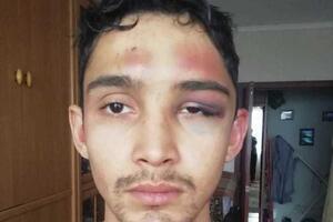 'Душили, лили кипяток и резали': в России пьяные силовики пытали невиновного парня. Фото и видео 18+