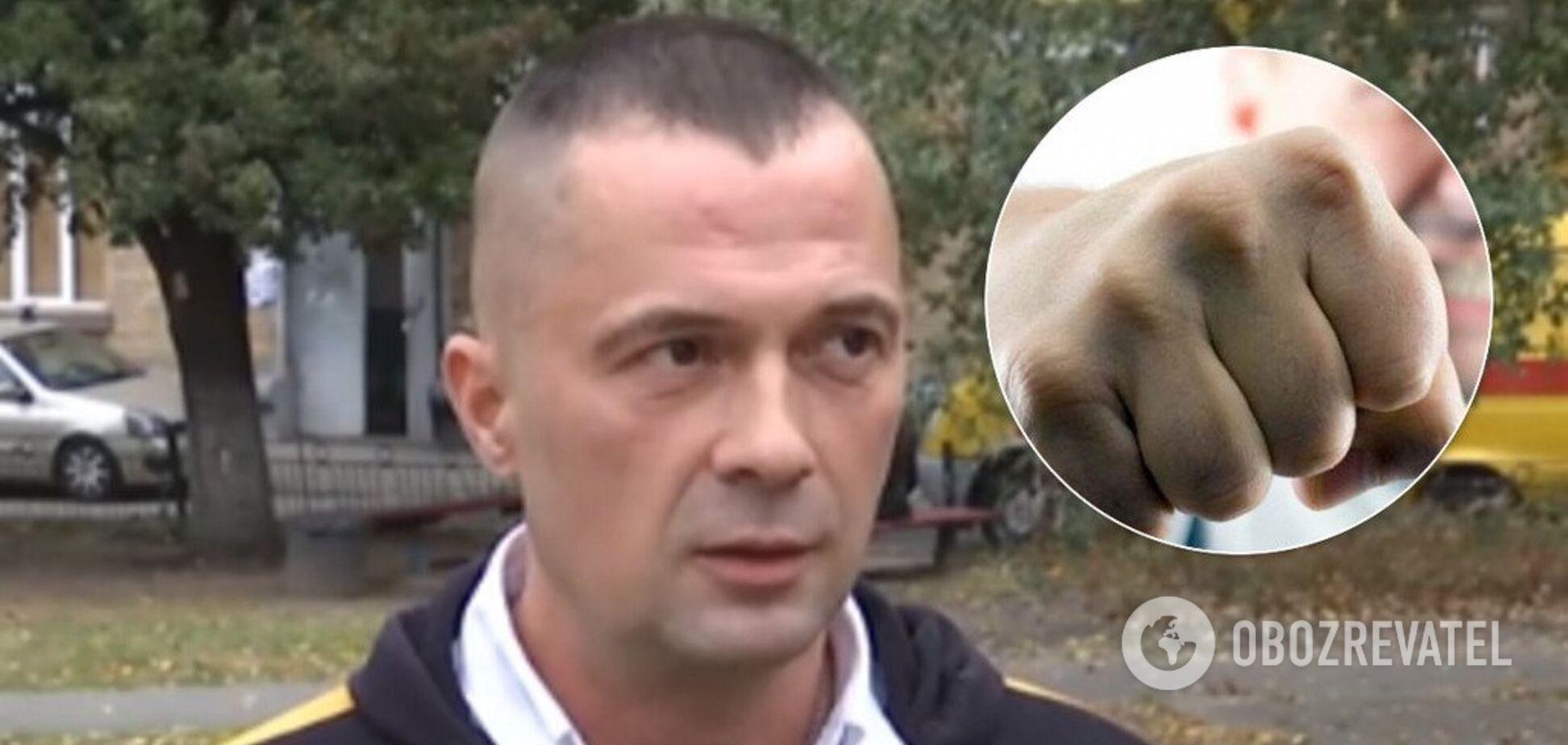 Появились подробности избиения ветерана АТО после каминг-аута