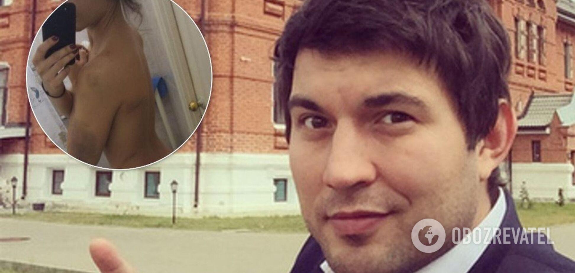 'Нанес 26 ударов тупым предметом': сын скандального Алибасова жестко избил любовницу