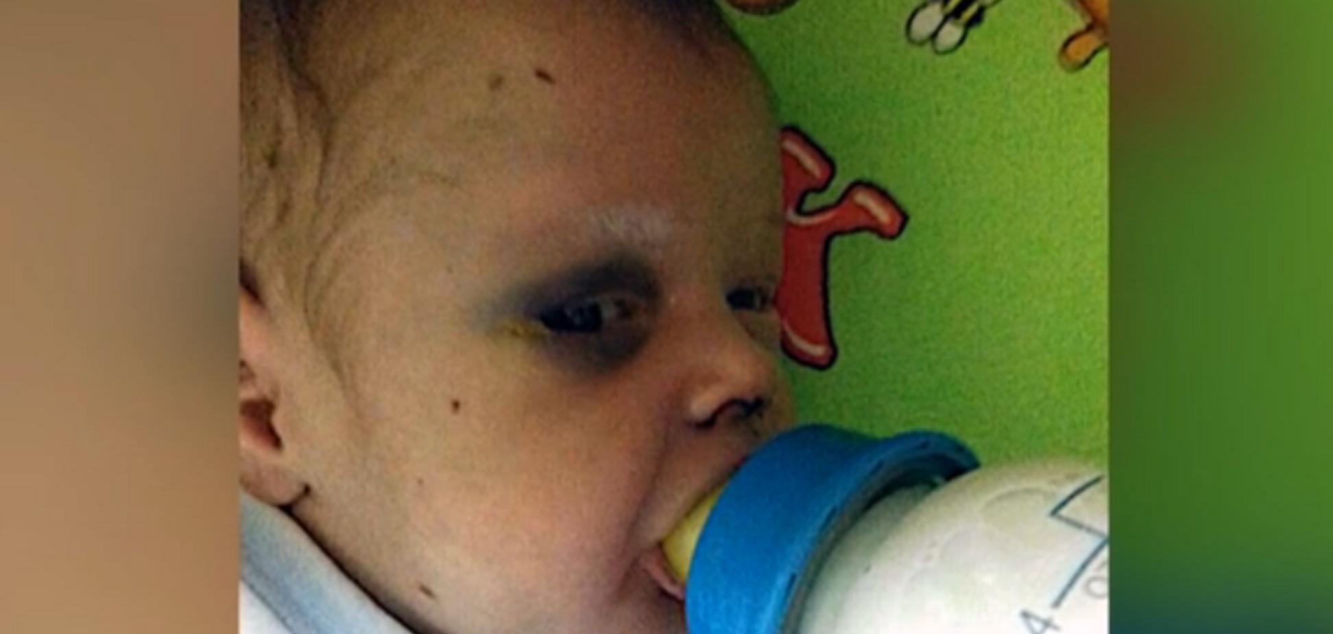 Кинула заради коханця: на Рівненщині мати жорстоко побила немовля. Кадри 18+