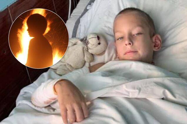 В Днепре дети подожгли 8-летнего мальчика