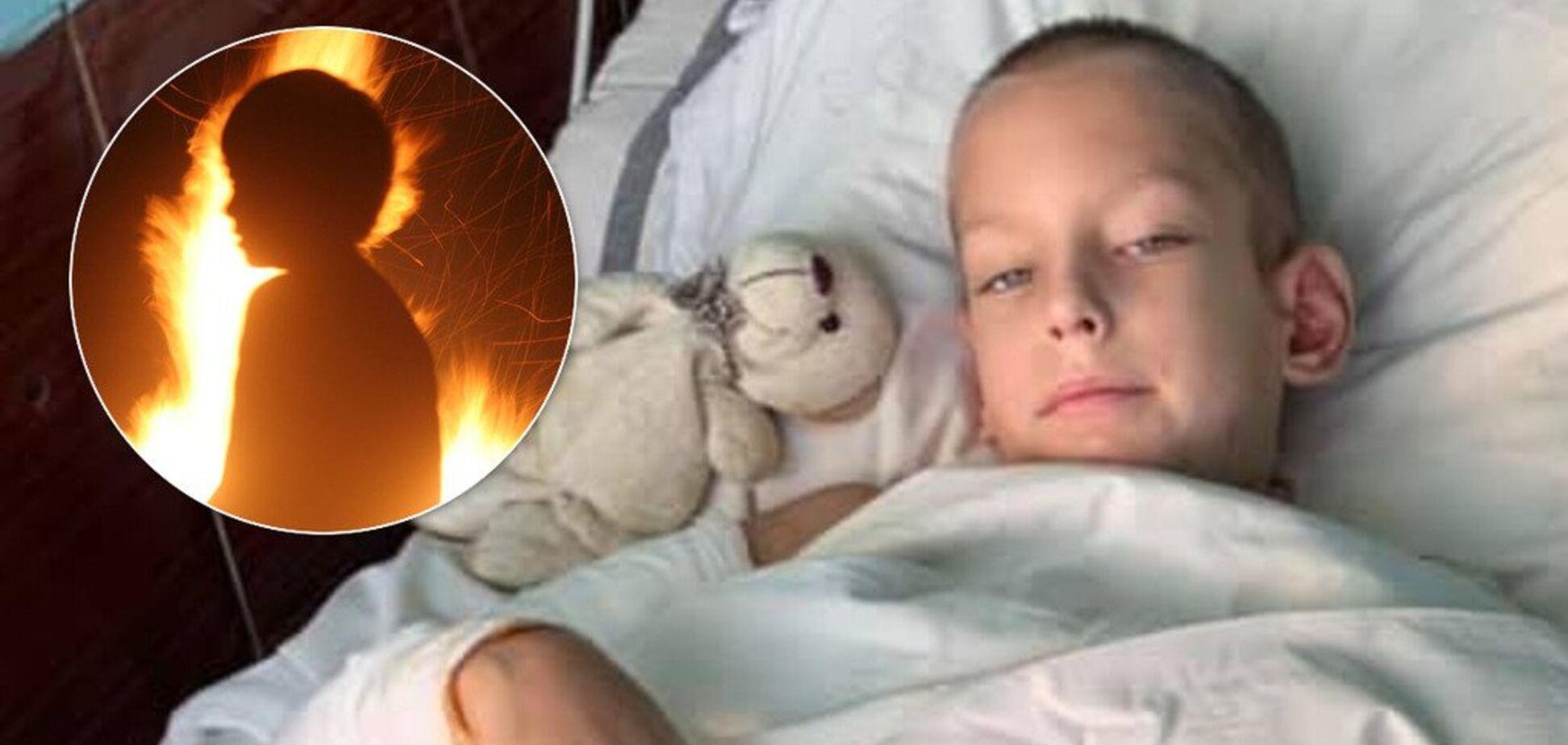В Днепре дети подожгли 8-летнего мальчика. Источник: Коллаж