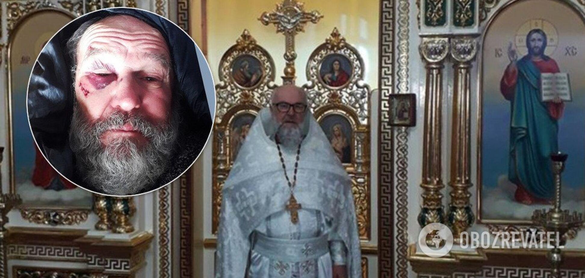 'От удара потерял сознание': жестоко избитый в Харькове священник дал первое интервью