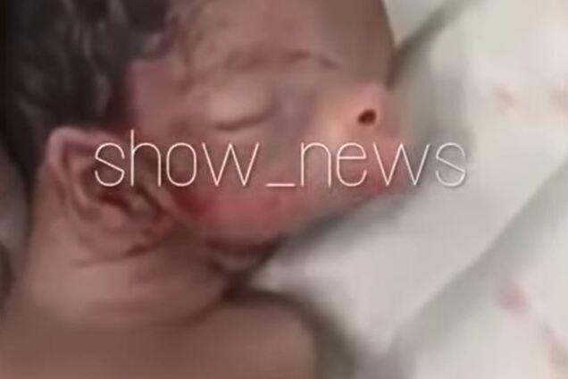 Ребенок с ушами на шее и свиным пятаком родился в Азербайджане: видео 18+ photo