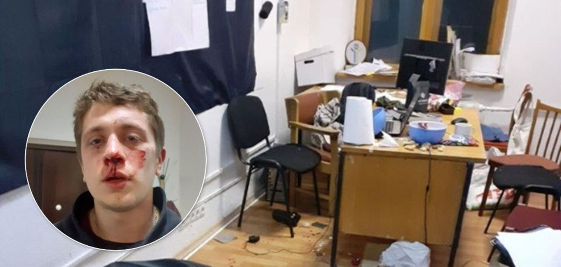 У Дніпрі невідомі в балаклавах жорстоко побили двох активістів: подробиці