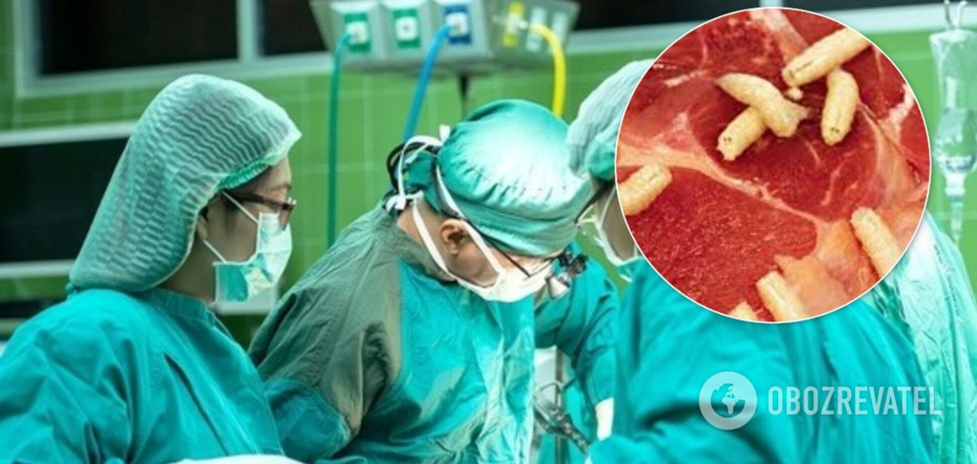 Поласував свининою: у мозку і легенях китайця виявили понад 700 паразитів