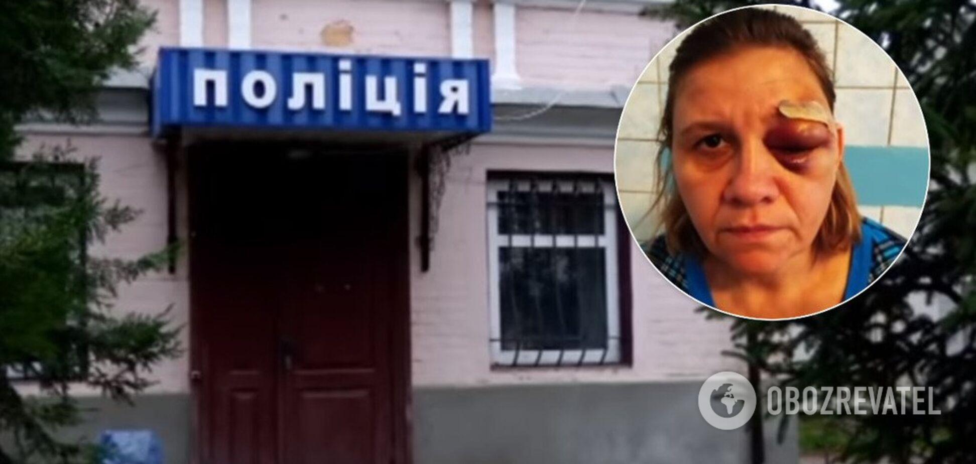 'Отрублю руки, вырву языки!' На Черкасщине экс-милиционер избил семью. Фото и видео