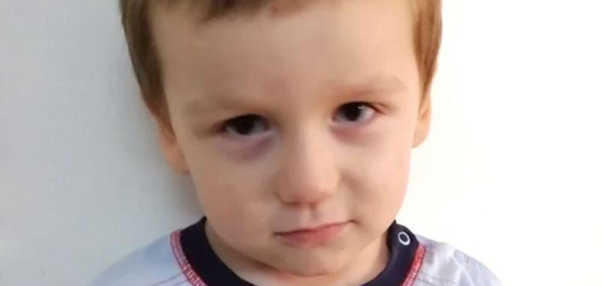 На теле были ссадины: в Киеве полиция объявила о розыске родителей малыша
