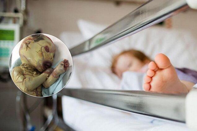 """В Италии малыша с редким """"синдромом вампира"""" покинули в больнице"""
