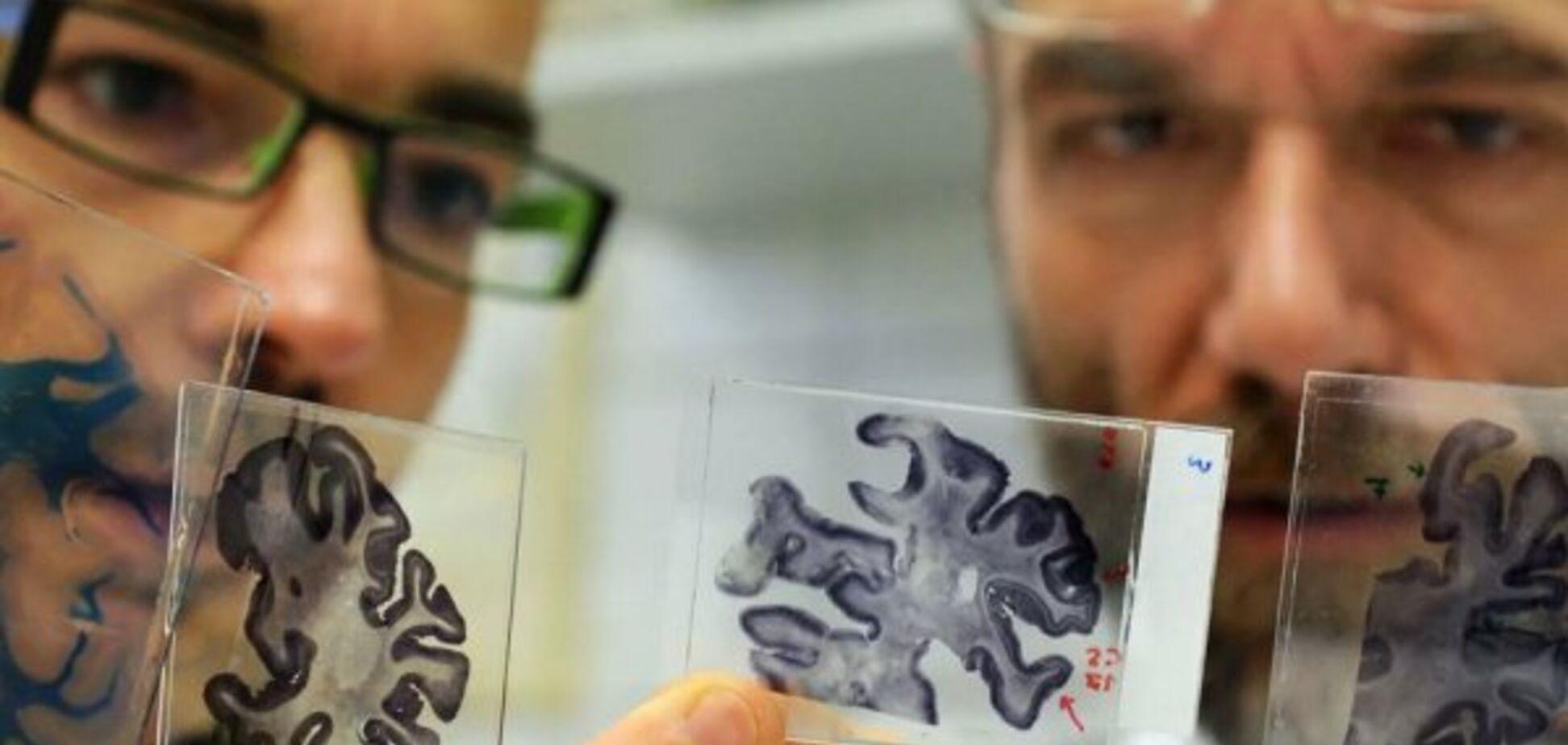 Знайдено засіб, що зупинить старіння мозку й поліпшить пам'ять