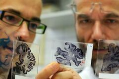 Найдено средство, что остановит старение мозга и улучшит память