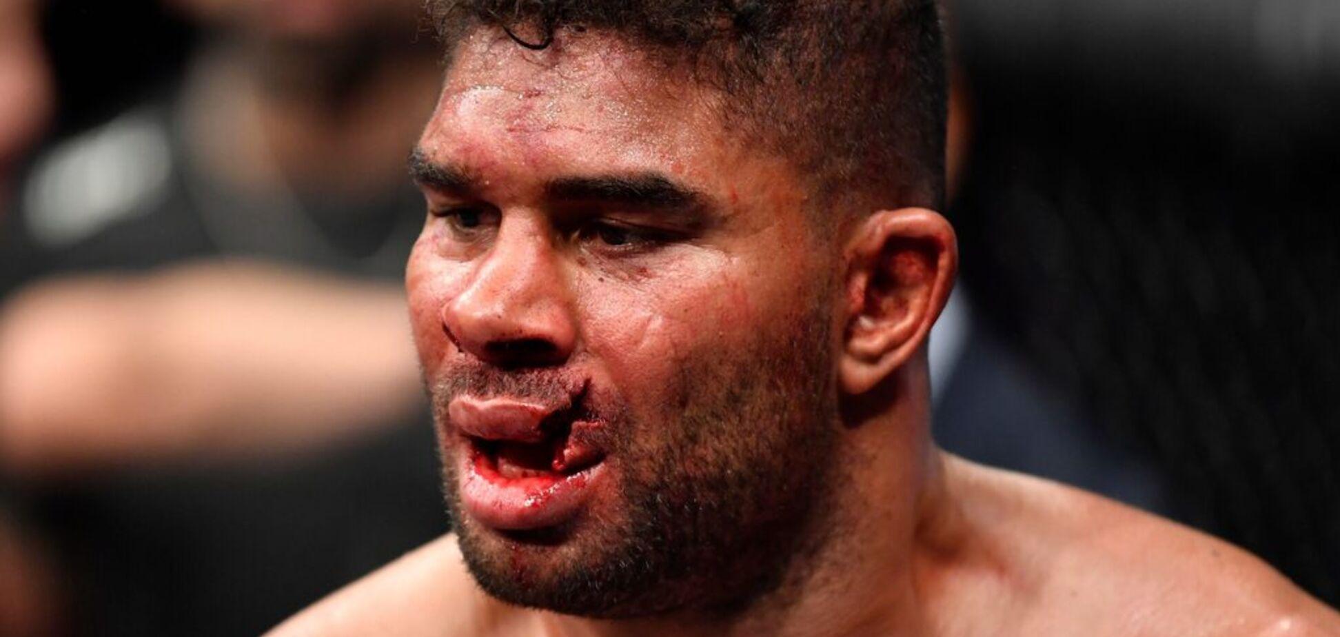 Боец UFC получил чудовищную травму на последней секунде боя: фото и видео 18+