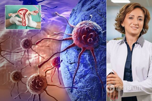 Онкологиня Катерина Харченко розповіла про жіночий рак