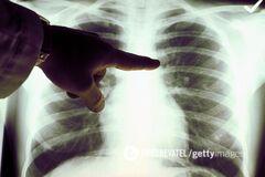 Названо засіб, що рятує від раку молочної залози
