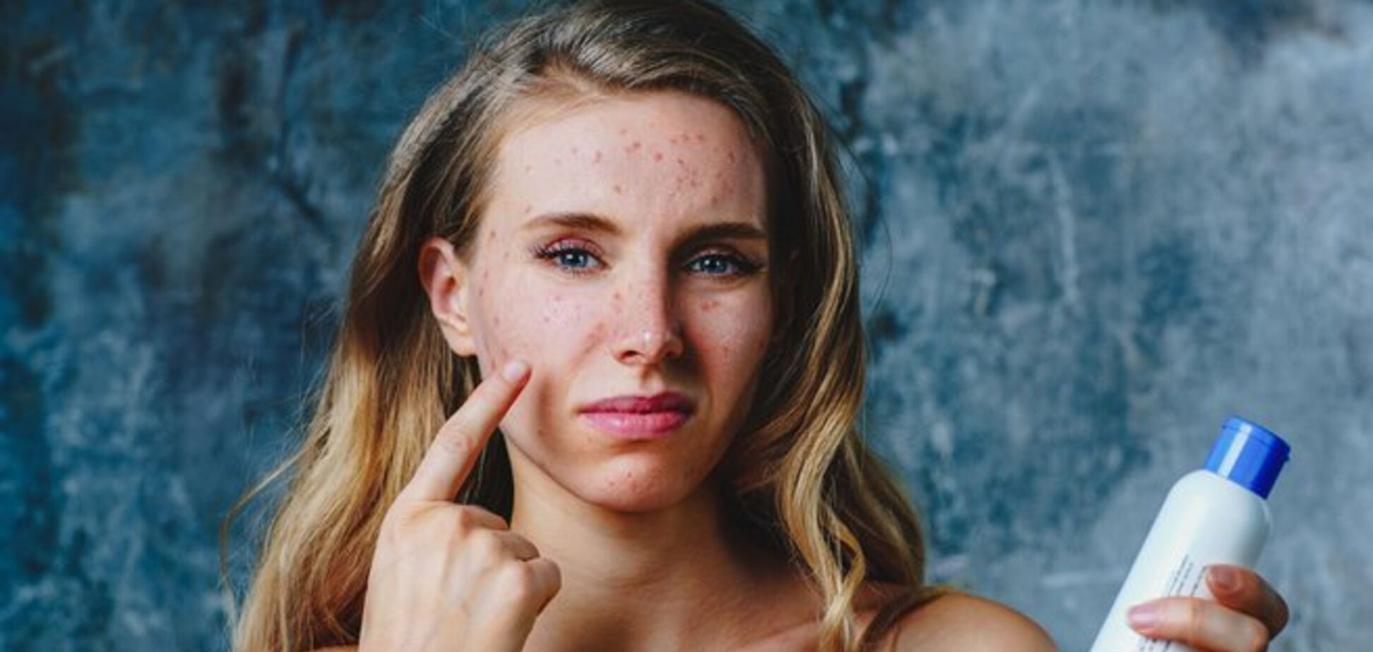 Аллергия на косметику: из-за чего появляется и как ее предотвратить