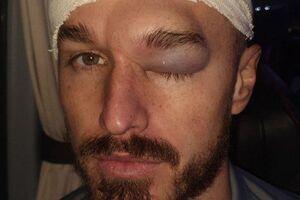 Жахлива гематома: футболіст ледь не втратив око під час матчу