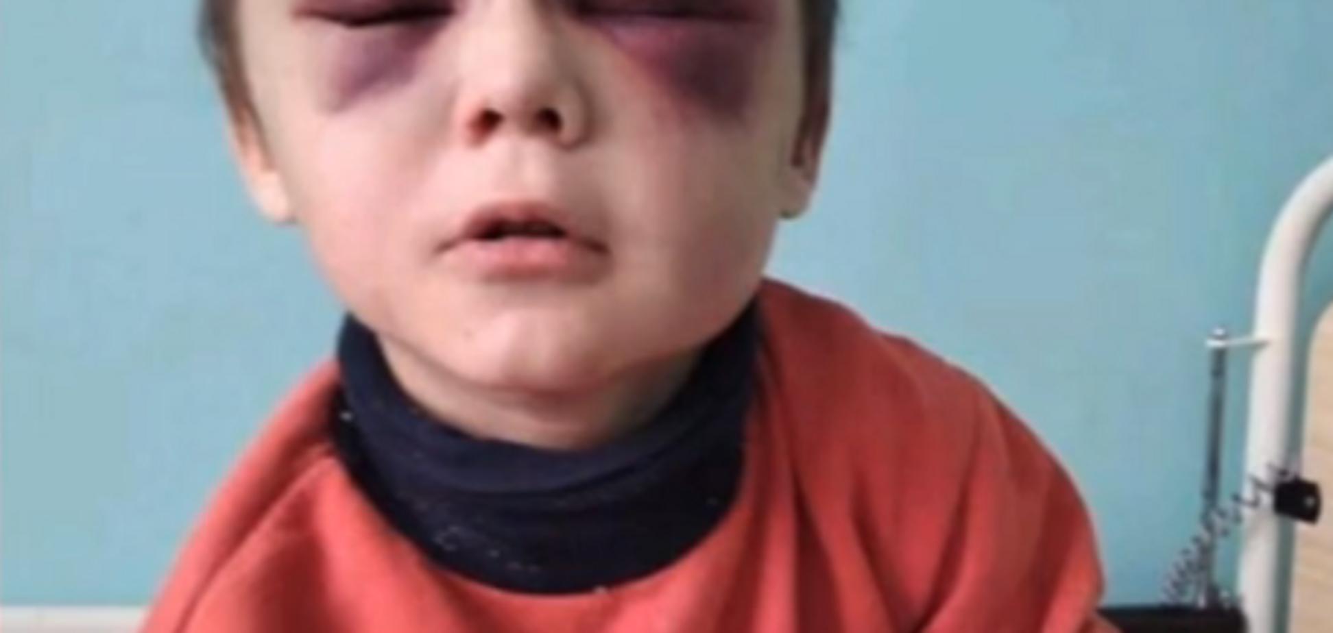 Очі чорні від побоїв: розкрилася страшна правда про побиття 6-річної дитини на Вінничині