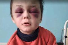 Глаза черные от побоев: вскрылась жуткая правда об избиении 6-летнего ребенка на Винничине
