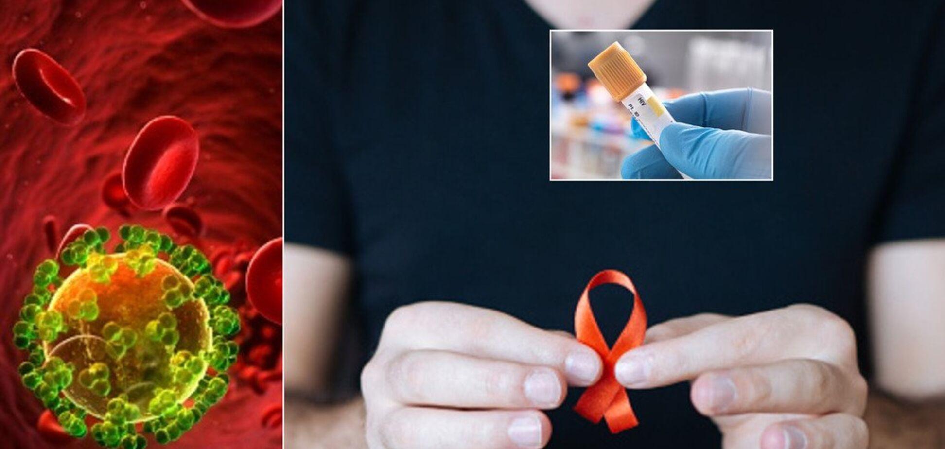 Катастрофа з ВІЛ в Україні: лікарі б'ють на сполох