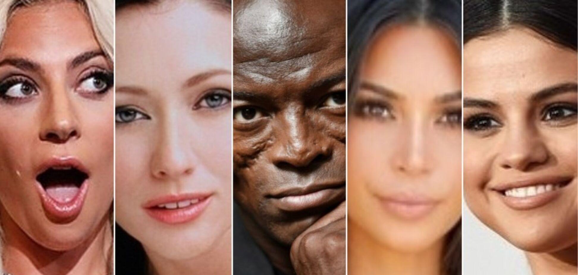 Смерть Юлії Началової: 5 знаменитостей з аутоімунними захворюваннями