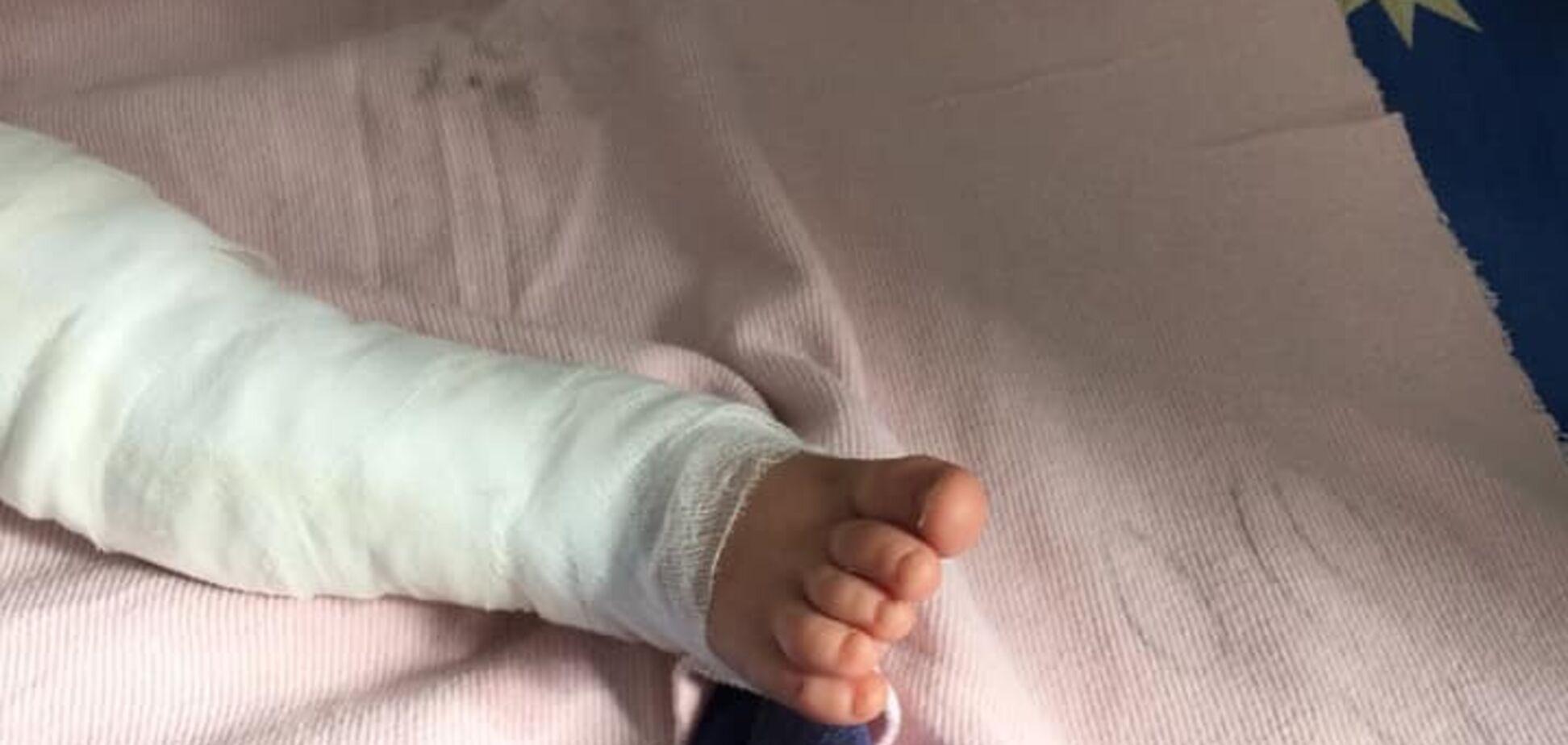 'Сварился' в кипятке? Подробности жуткого ЧП с малышом на Одесщине