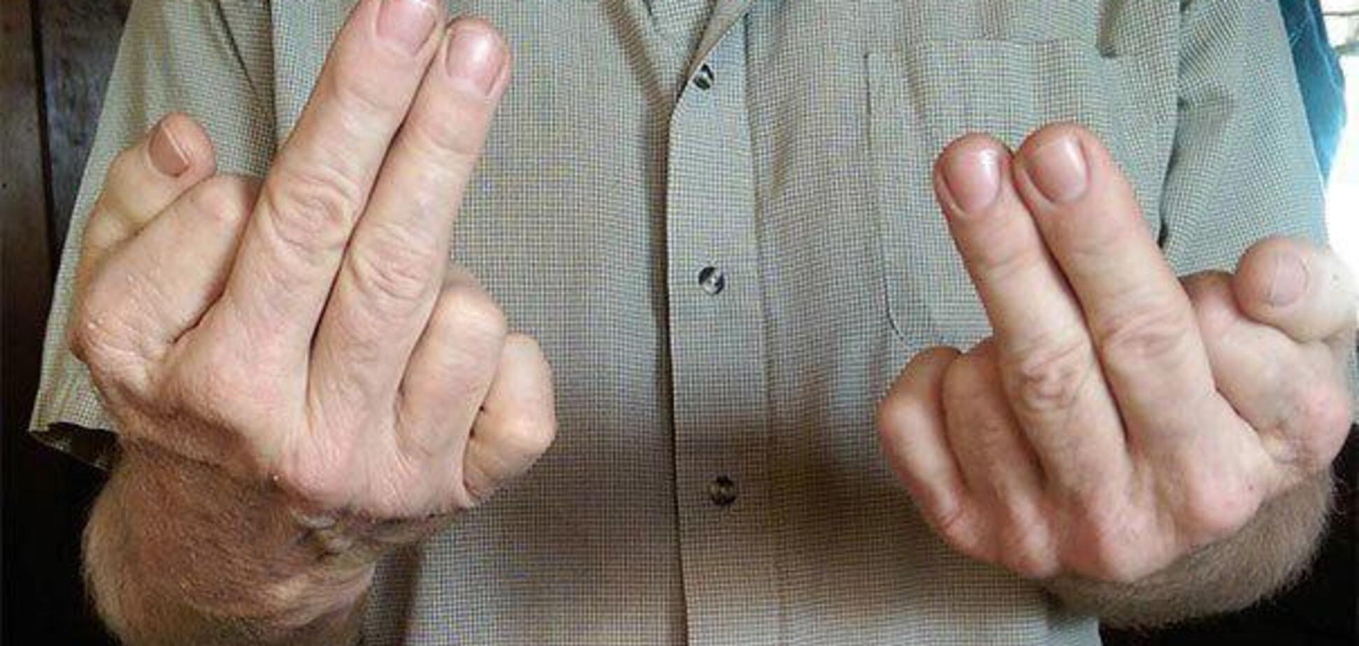 Шесть пальцев и языки с бахромой: как выглядят 'Люди Икс' среди нас