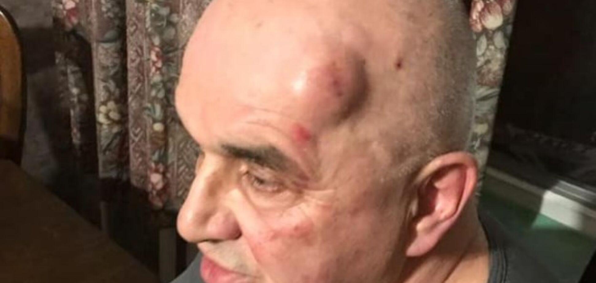Люди в масках начали стрелять: в Запорожье напали на ''антимайдановца''