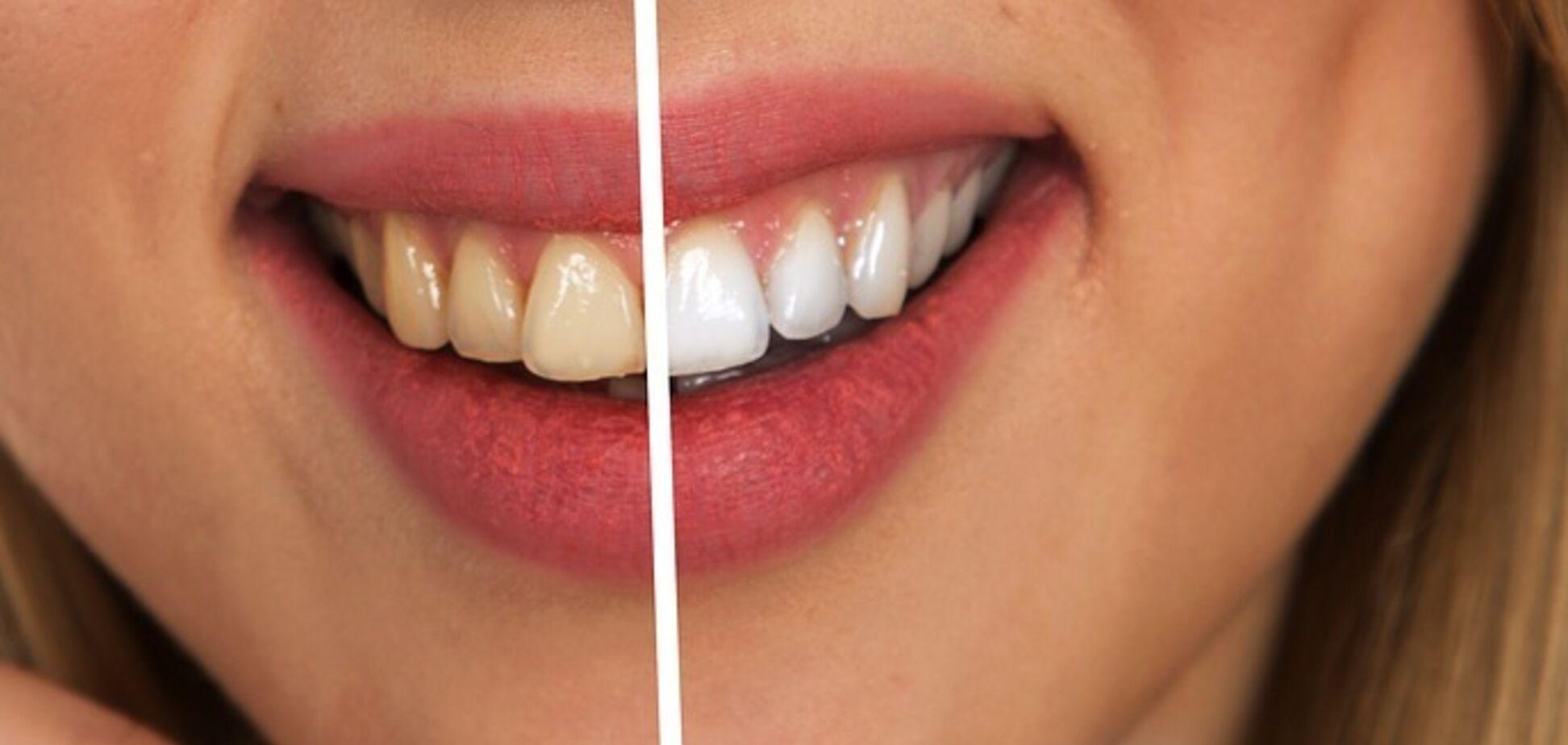 Отбеливание зубов признали опасным