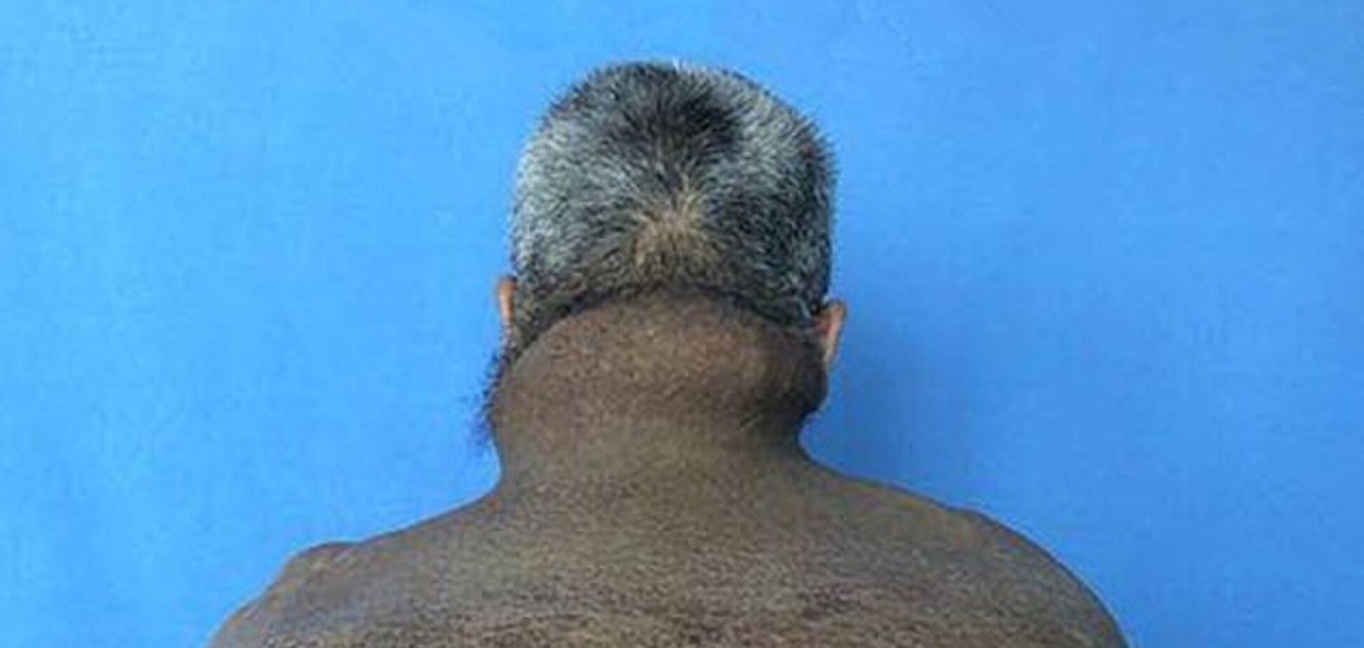 Китаец 30 лет растил 15-килограммовую опухоль: фото 18+