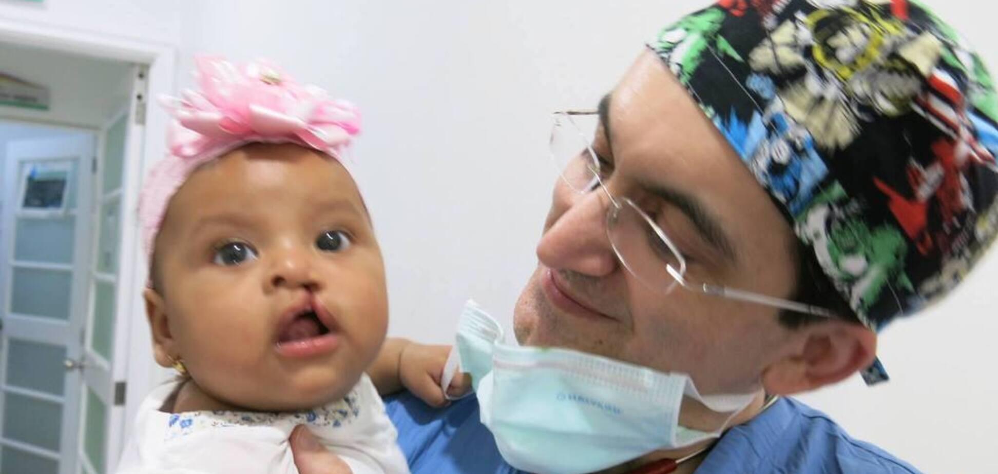 Хірурги з Києва та колеги з США безкоштовно проведуть операції дітям з патологією 'заяча губа' - КМДА