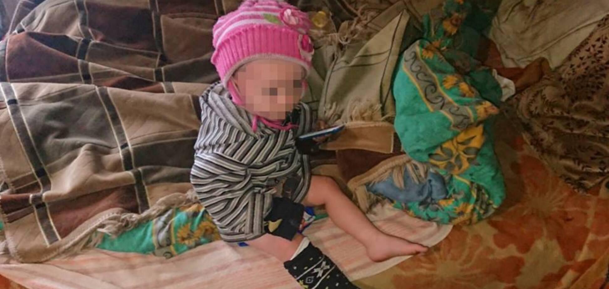 Жила в жутких условиях: на Луганщине спасли полуторагодовалого ребенка