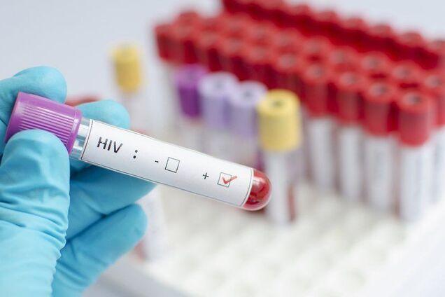 Революция в медицине: создан новый метод лечения ВИЧ