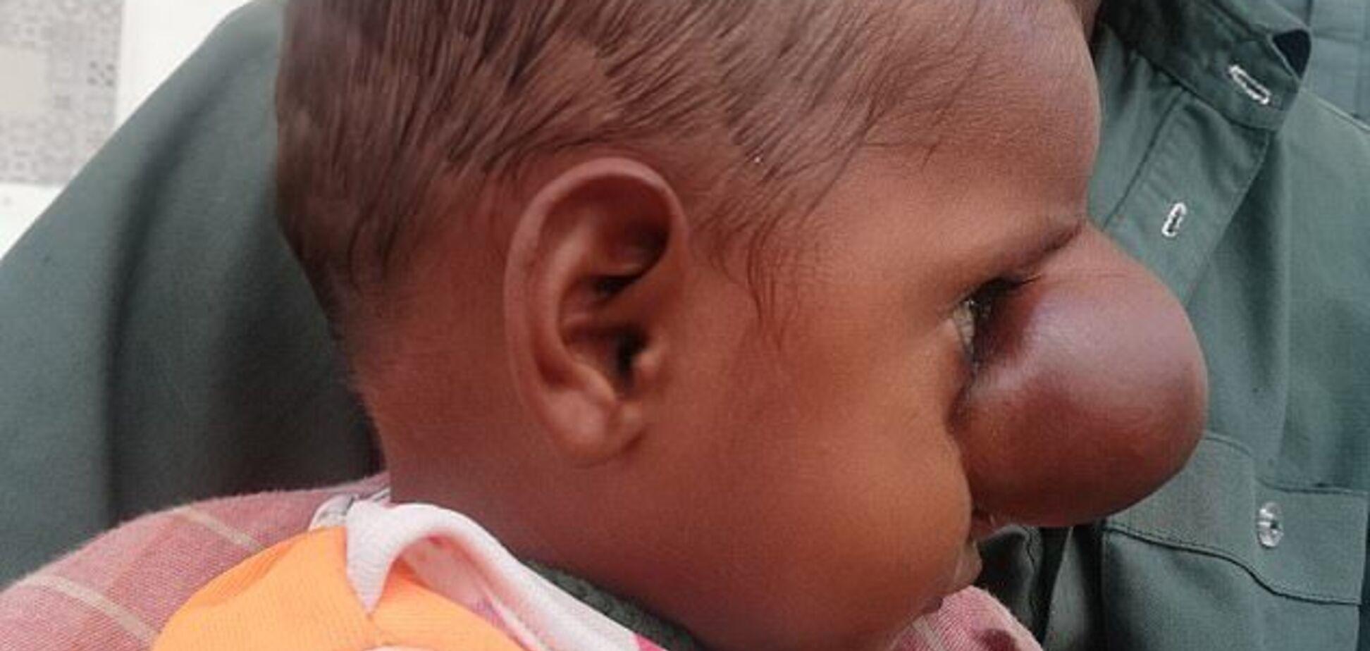 У Пакистані народилася дитина з мозком на обличчі: вражаючі фото