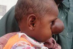 В Пакистане родился ребенок с мозгом на лице: поразительные фото