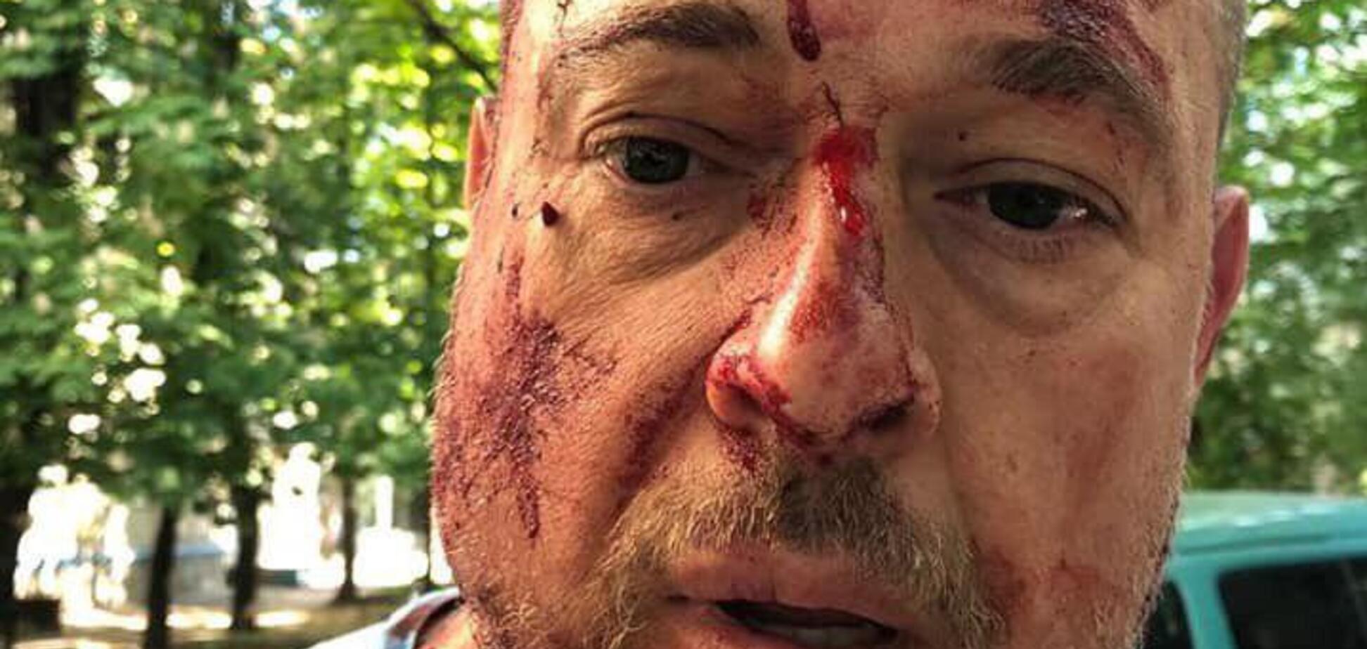 Били кастетами по голові: в Харкові скоєно жорстокий напад на активіста. Фото і відео 18+