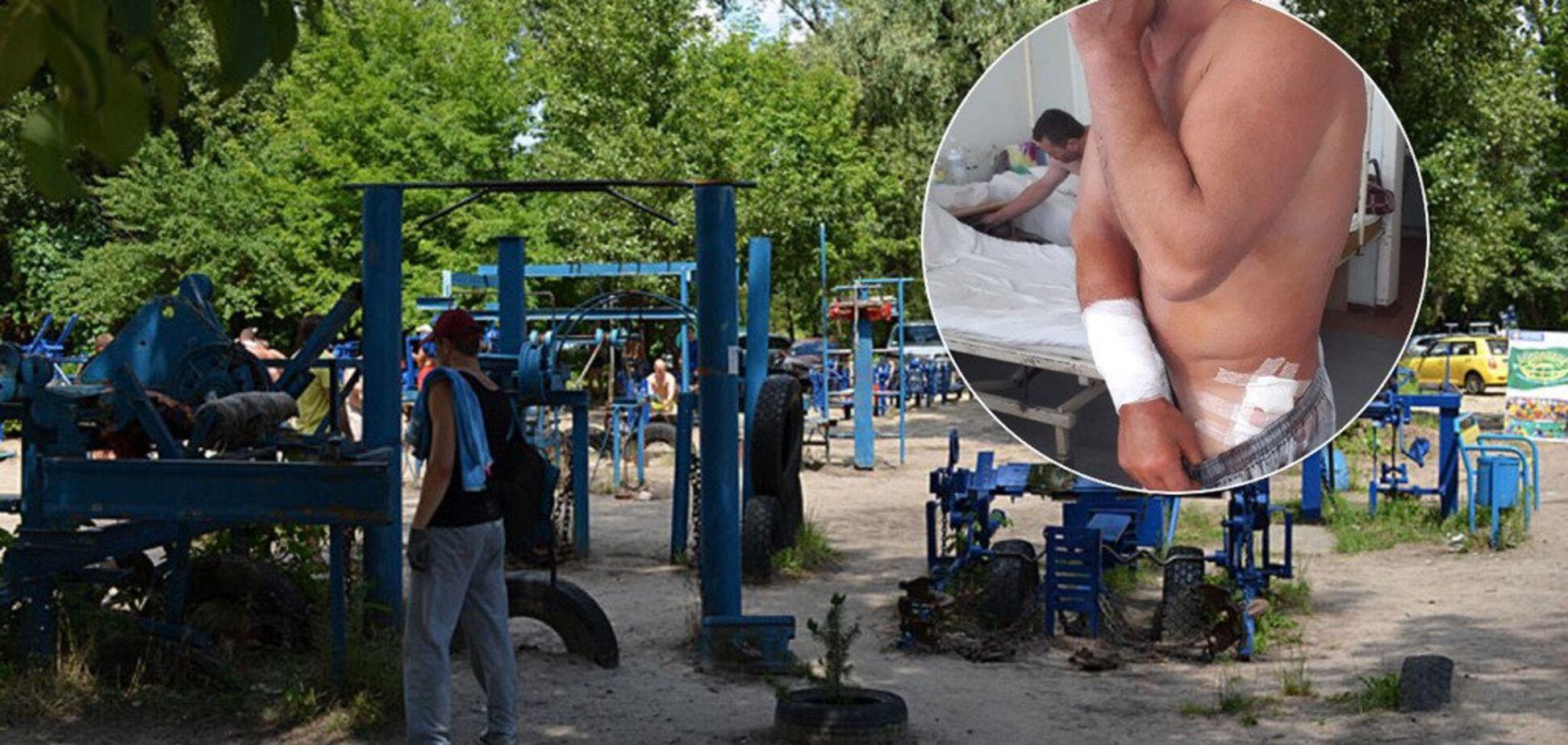Стріляли: 'качалка' в Гідропарку опинилася в небезпеці