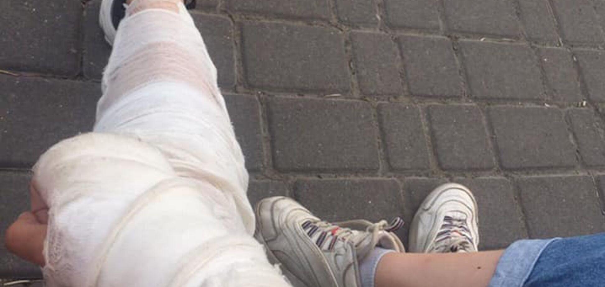 Рука та нога в гіпсі