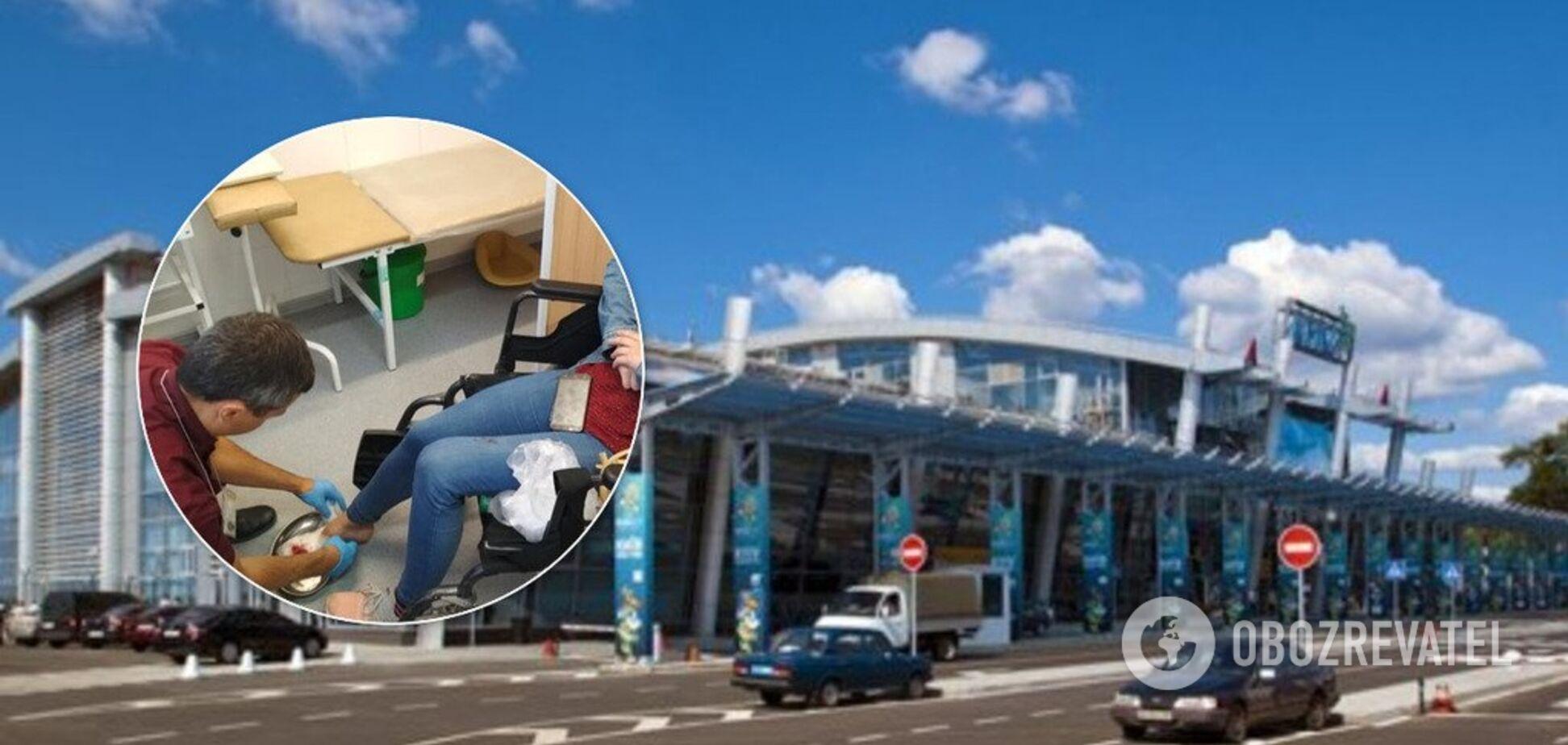 У київському аеропорту дівчині переламали пальці: фото, відео і подробиці НП
