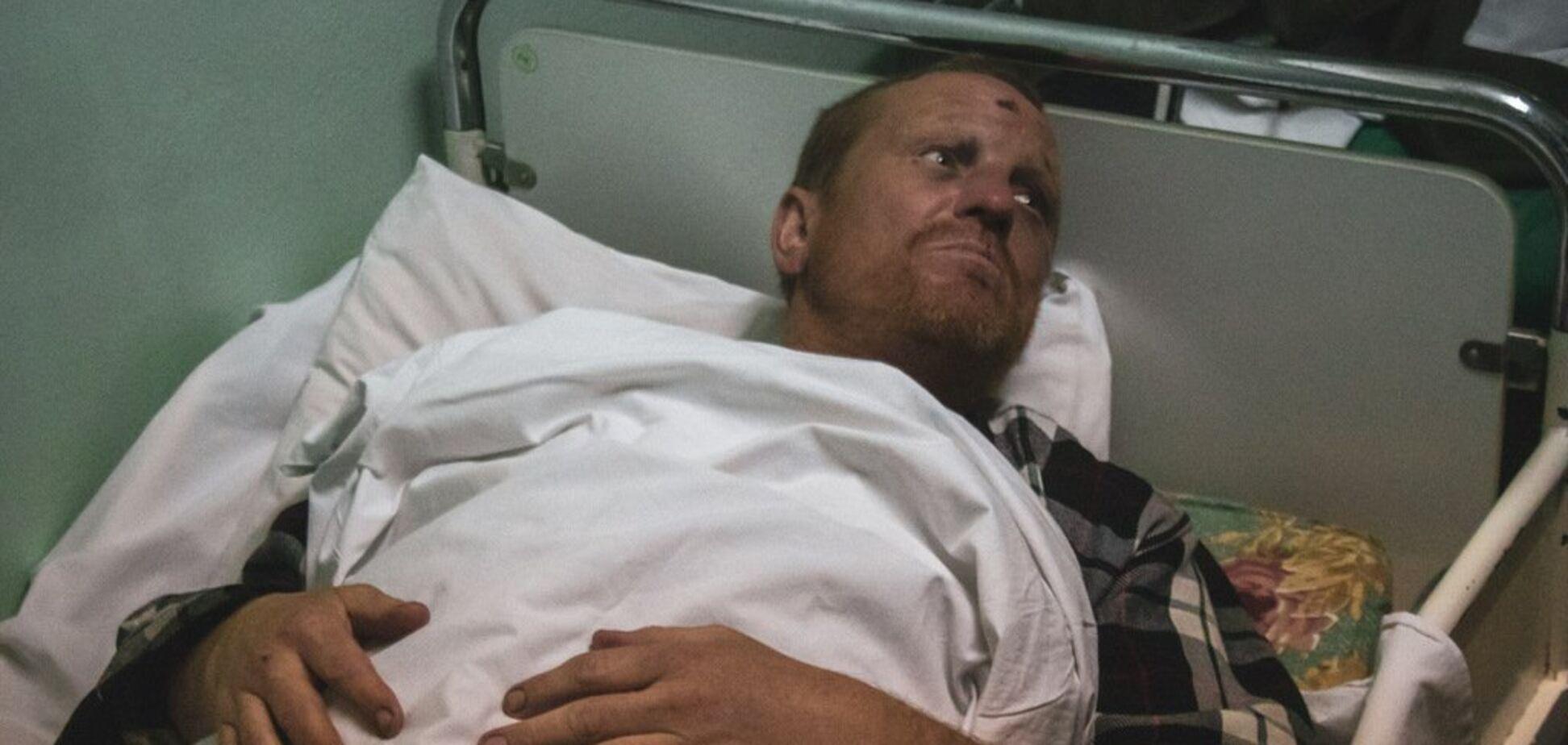 Хотел умереть: в Киеве избили и ограбили туриста из Ирландии