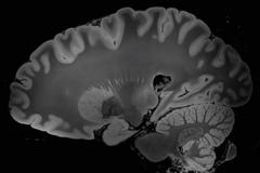 МРТ на 100 часов: ученые получили самые подробные изображения мозга человека