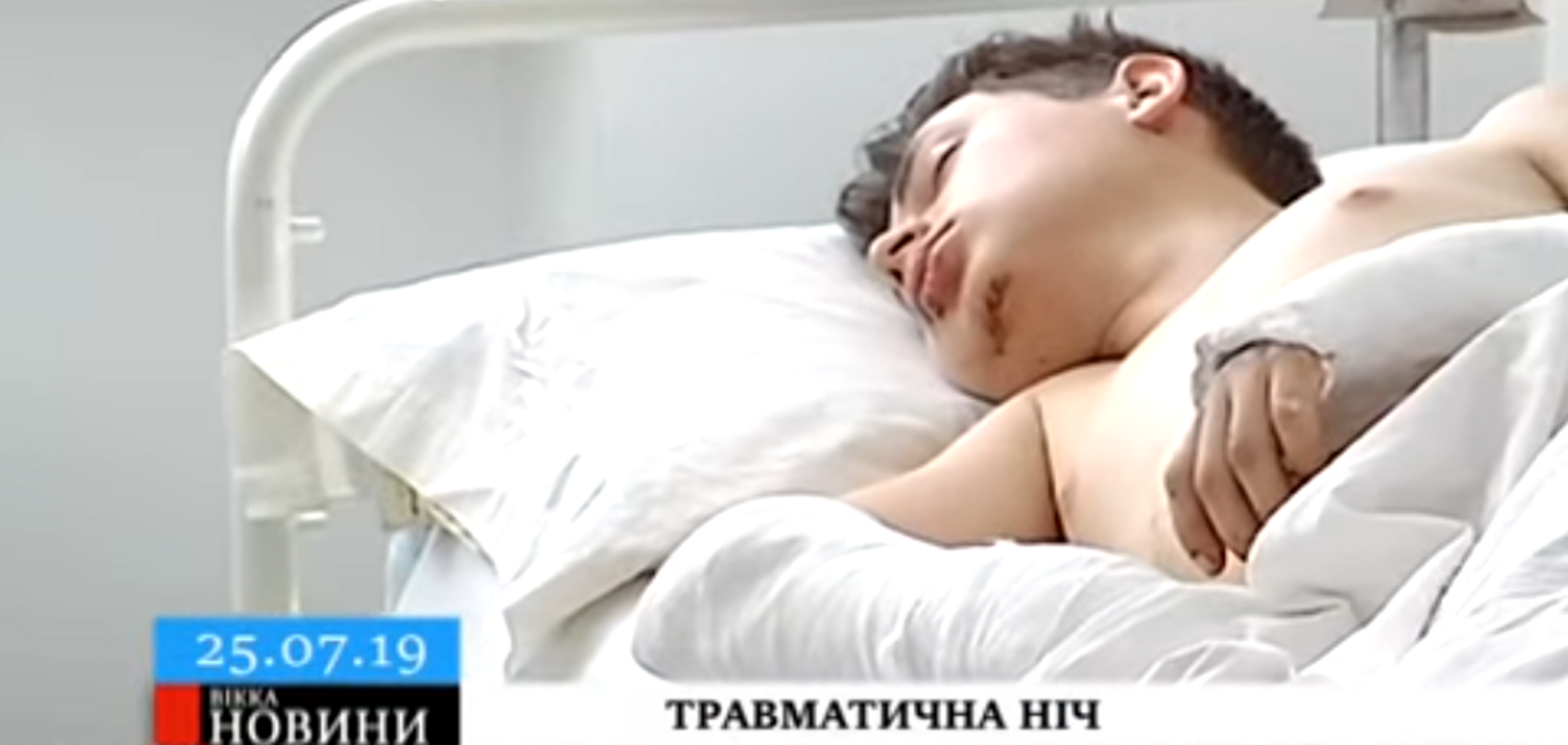 'Провожал девушку домой': на Черкасщине жестоко избили 17-летнего парня, он в тяжелом состоянии