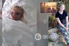 'Вырвали волосы, прыгали на лице': в России трое парней использовали женщину, как боксерскую грушу. Фото 18+