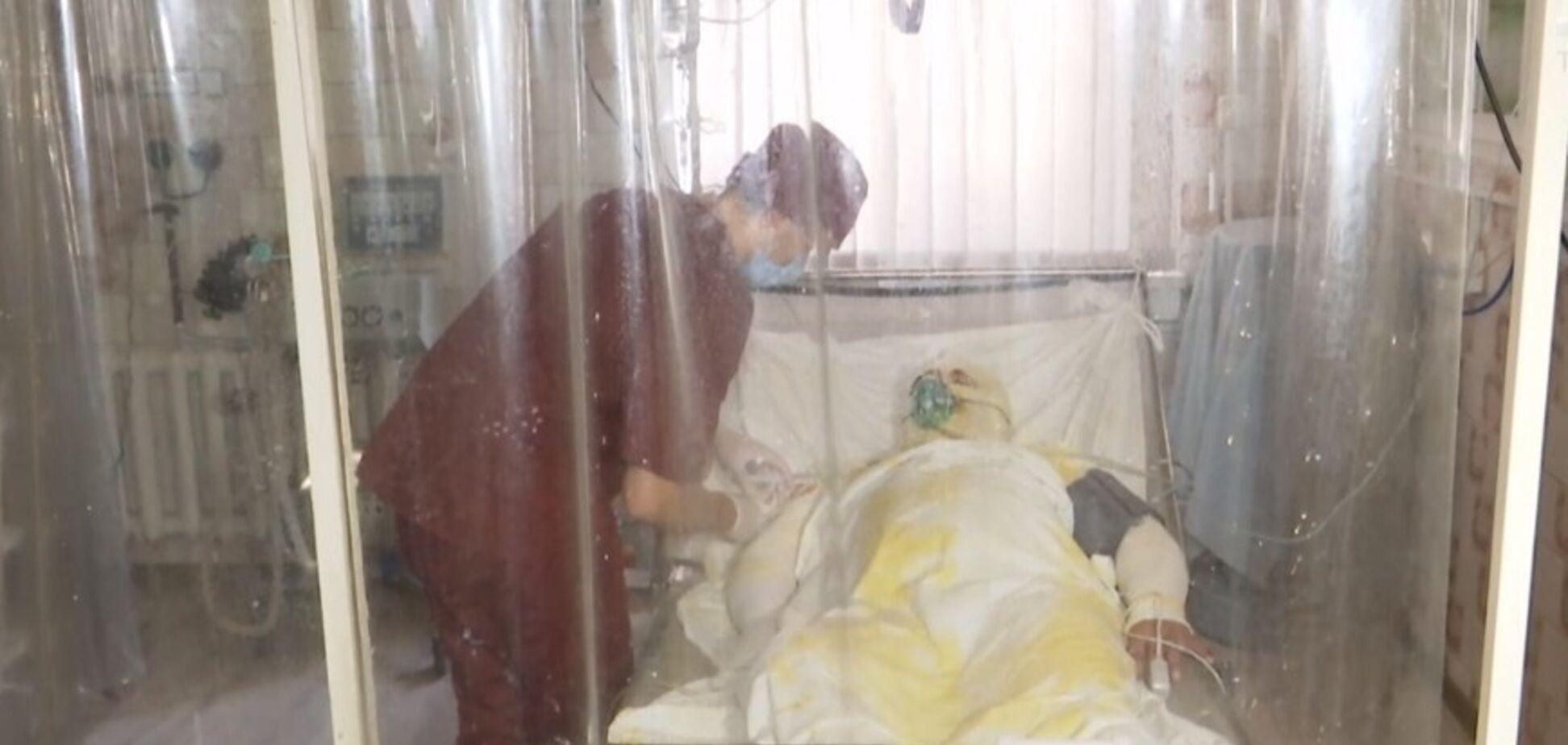 Сгорело 65% тела: бойцу ООС срочно нужна помощь